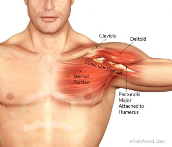 pectoralis-major-inflammation2