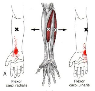 Flexor%20Carpi%20Radialis%20and%20Ulnaris